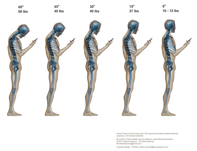 Text Neck, iPosture, iHunch